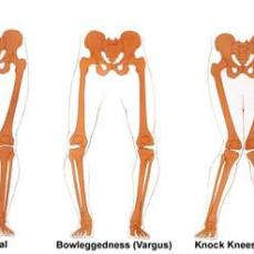 knee positions